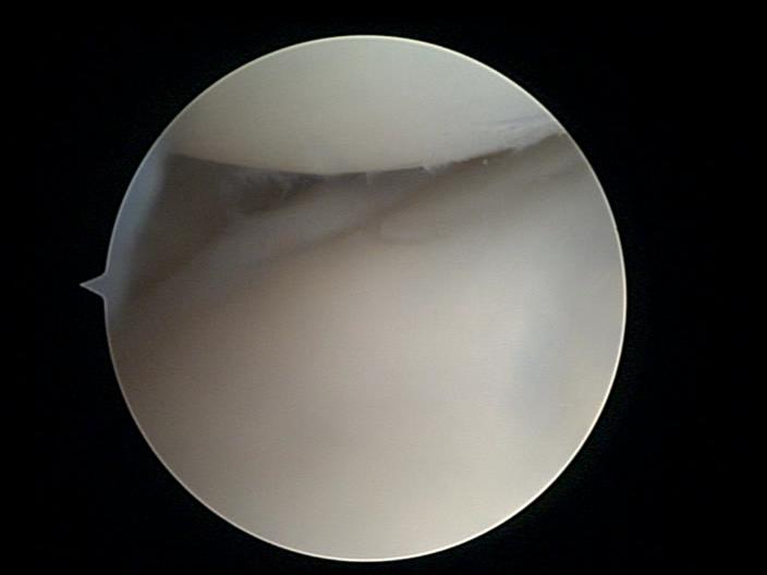 kolano-widok-przez-artroskop